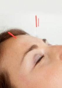 Skincare Acupuncture